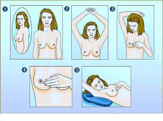 Brust abtasten, Sebstkontrolle