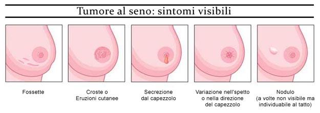 tumore-seno-sintomi-visibili